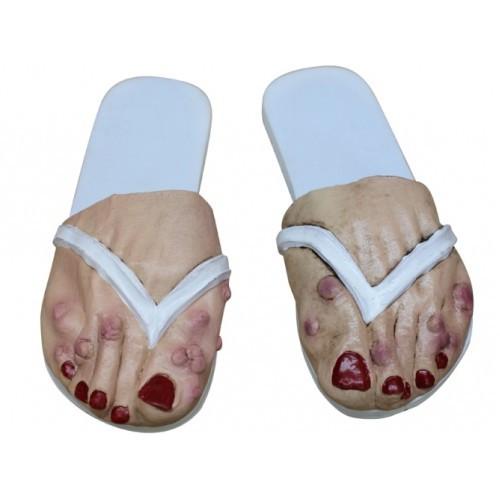 Dames voeten met bulten